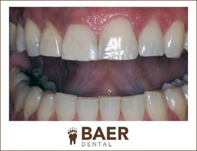 Laser Gum Dental Treatment