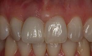 after dental crown implant