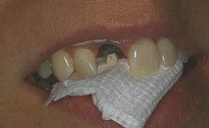 before dental crown implant