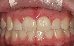 after laser gum tissue removal