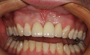 Missing Tooth Cosmetic Dentistry