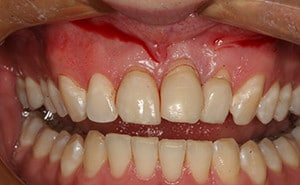 Cosmetic Missing Tooth Replacement