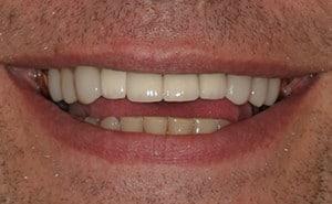 Baer Dental Treatment Results