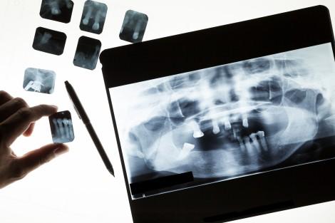 dentist xrays