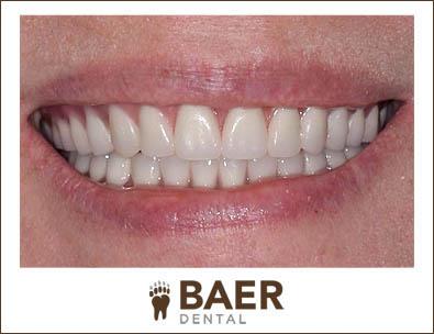 Custom Dentures full and partial image