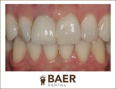 Dental Implants Smiling Mouth