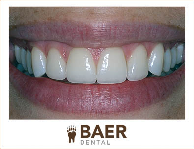 Patient with Cosmetic Dentistry